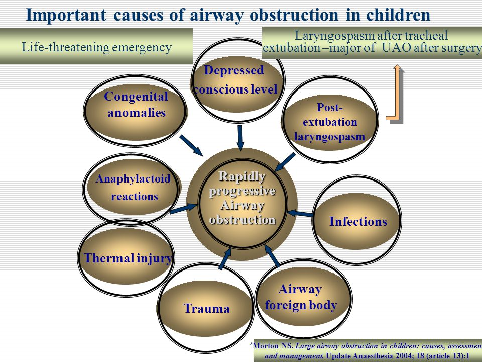Important causes of airway obstruction in children