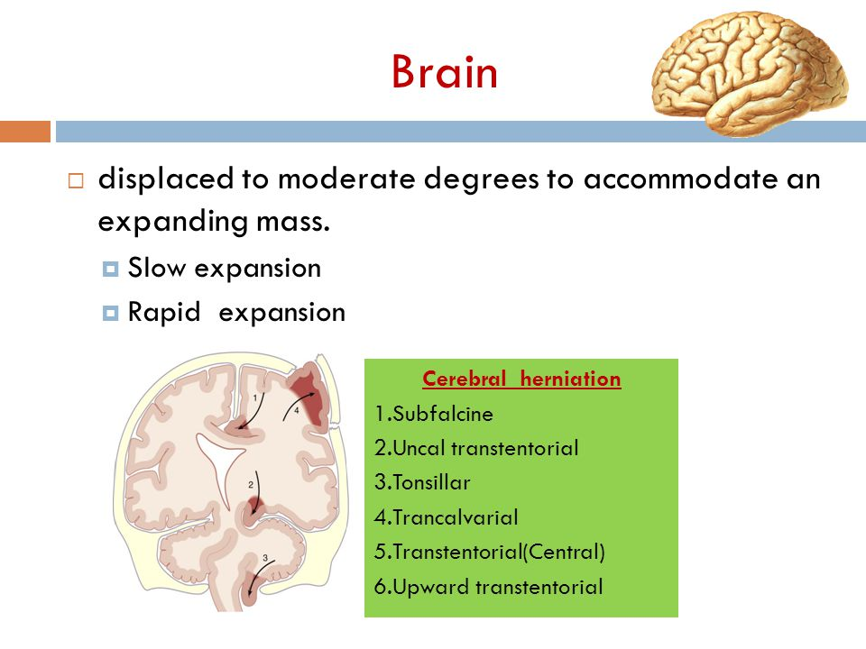 Brain displaced to moderate degrees to accommodate an expanding mass.