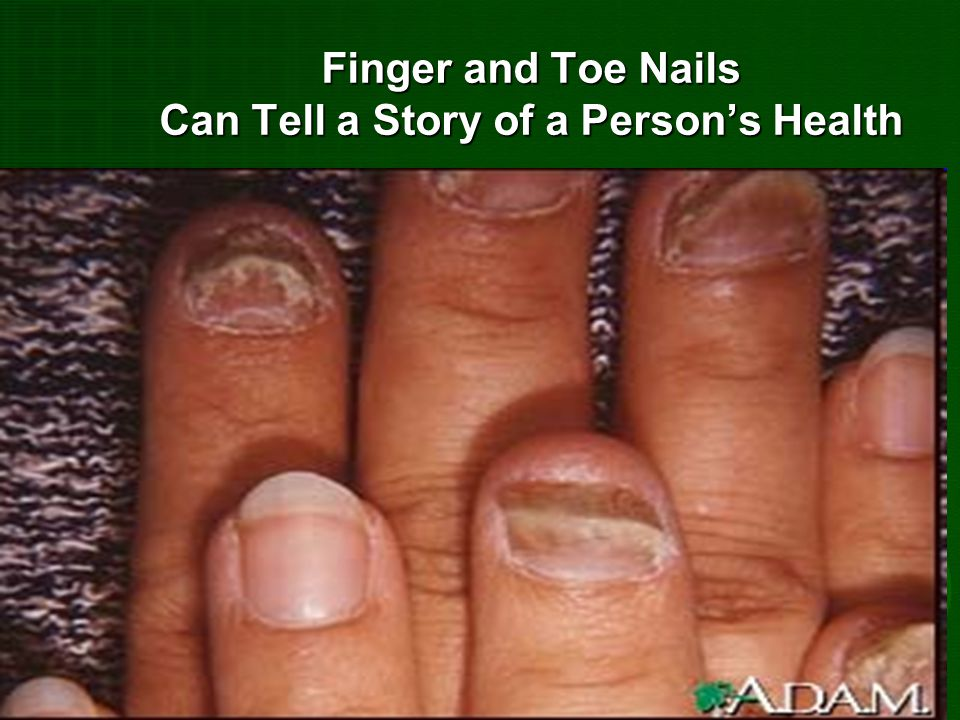 Finger and Toe Nails Can Tell a Story of a Person's Health