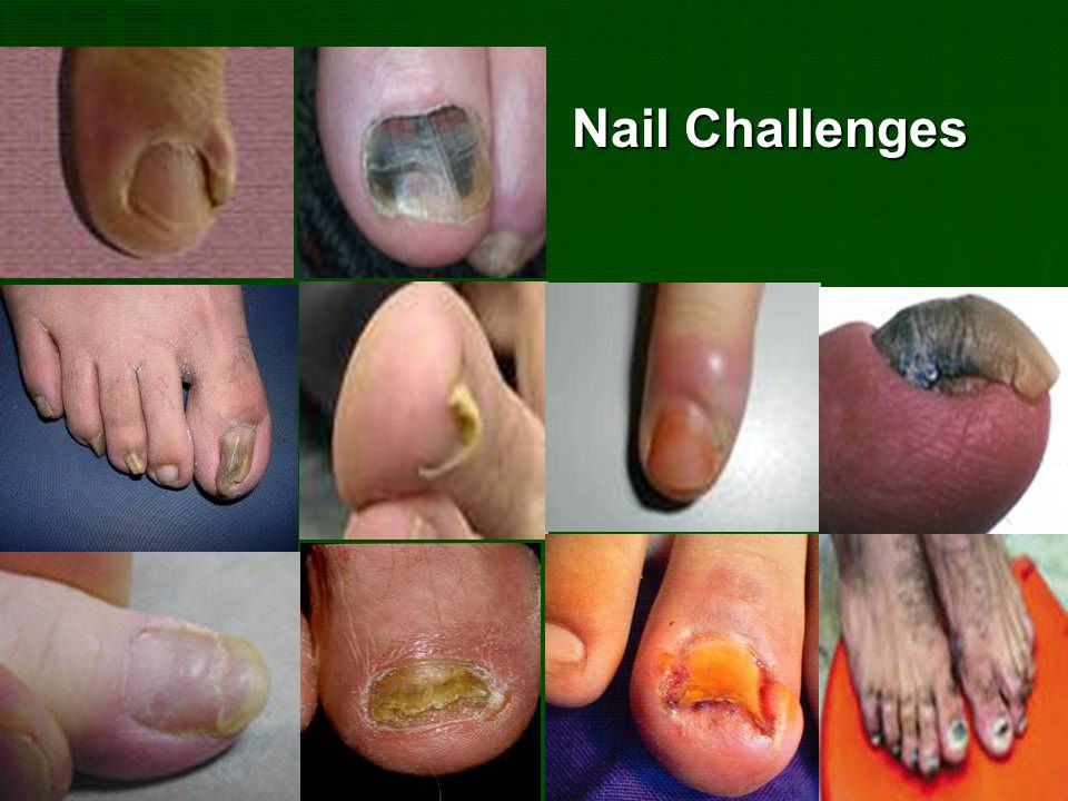 Nail Challenges