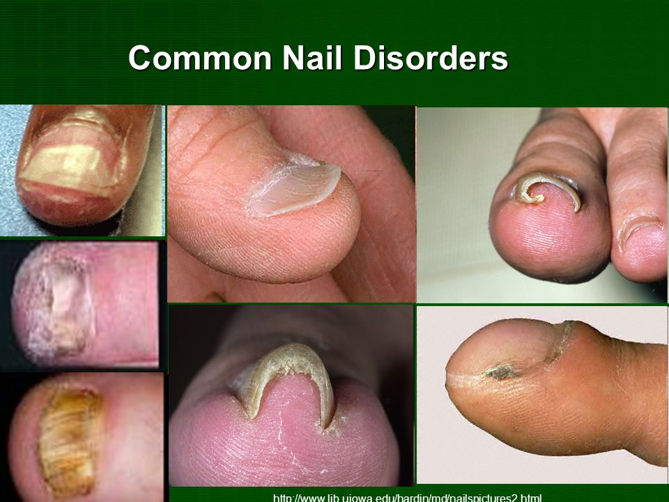 Common Nail Disorders http://www.lib.uiowa.edu/hardin/md/nailspictures2.html
