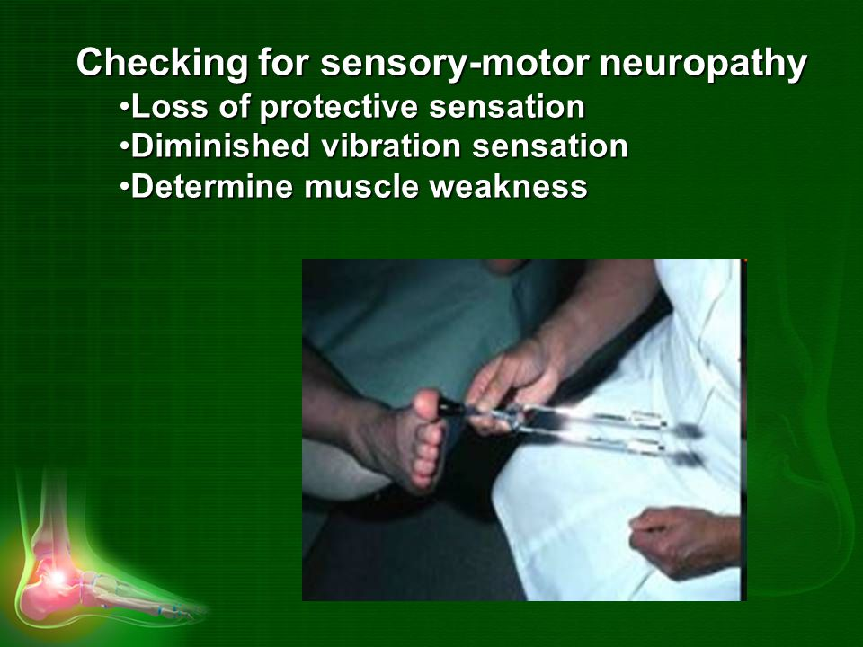 Checking for sensory-motor neuropathy