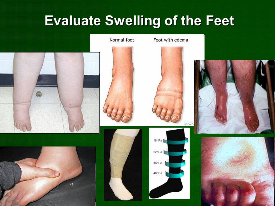 Evaluate Swelling of the Feet
