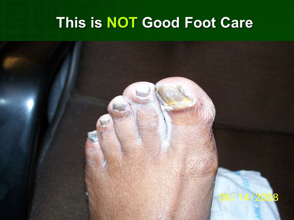 This is NOT Good Foot Care