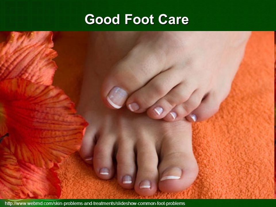 Good Foot Care http://www.webmd.com/skin-problems-and-treatments/slideshow-common-foot-problems