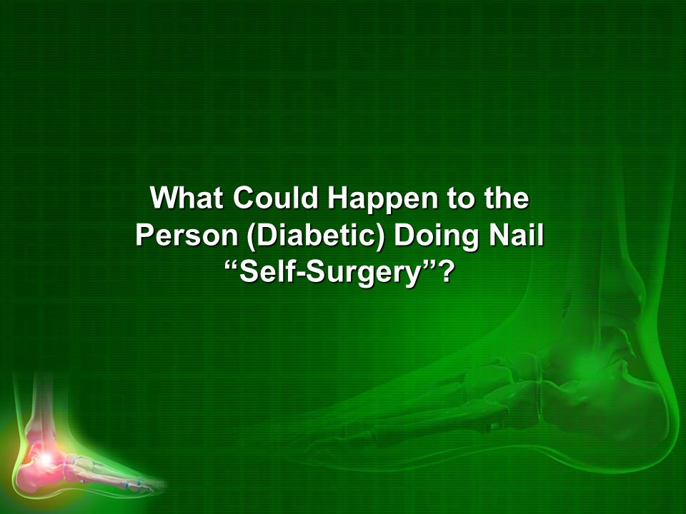 What Could Happen to the Person (Diabetic) Doing Nail Self-Surgery