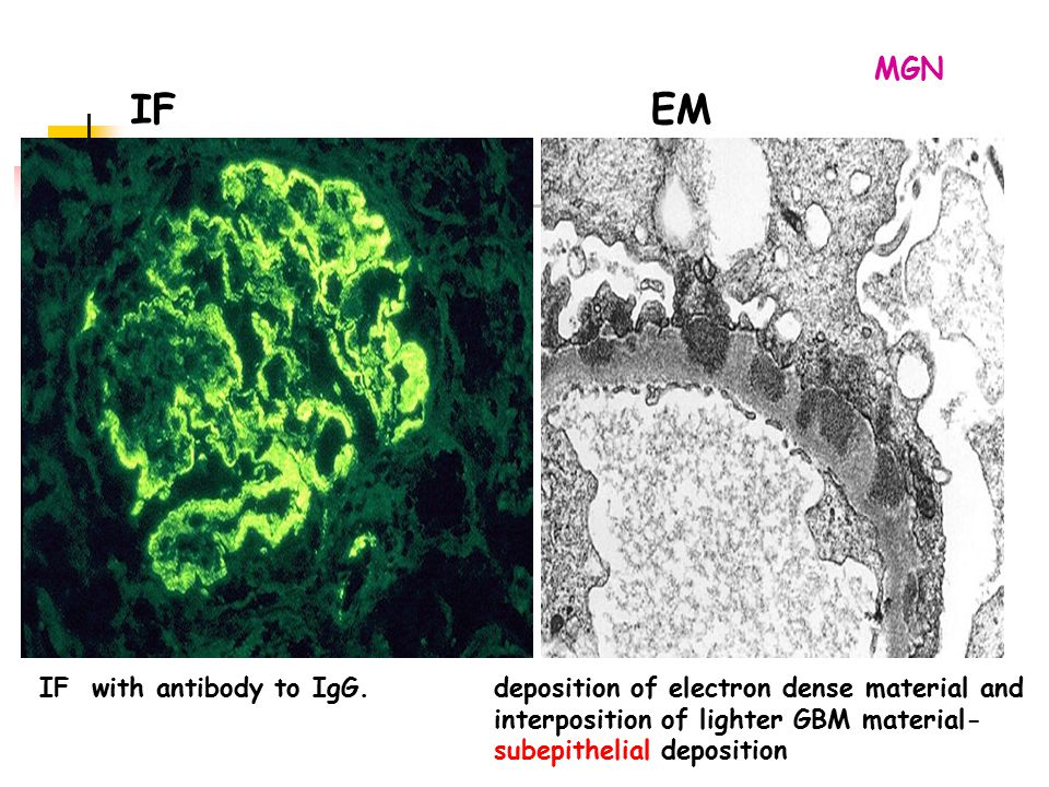 IF EM MGN IF with antibody to IgG.