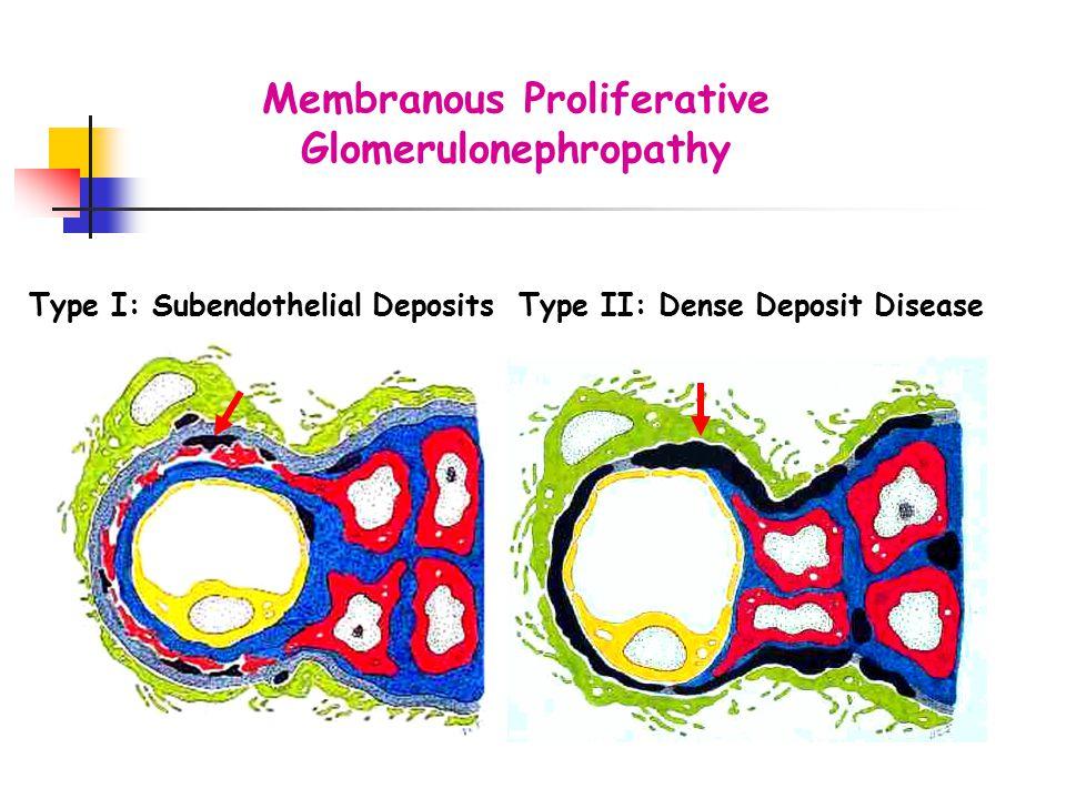 Membranous Proliferative Glomerulonephropathy