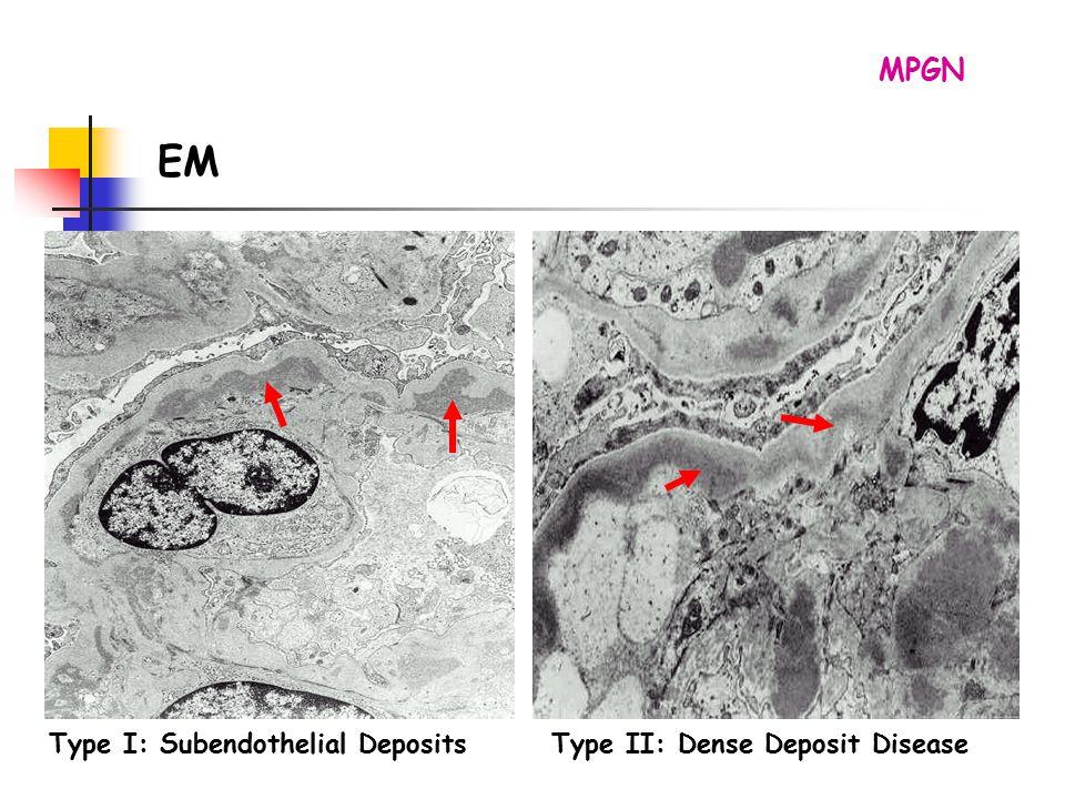 MPGN EM Type I: Subendothelial Deposits Type II: Dense Deposit Disease