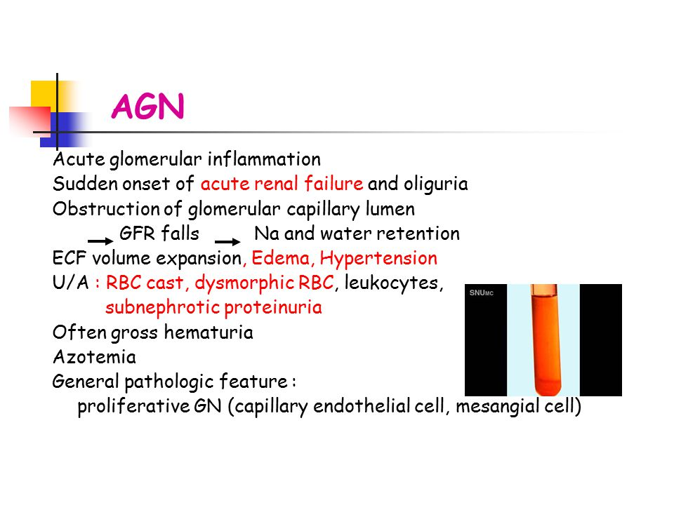 AGN Acute glomerular inflammation