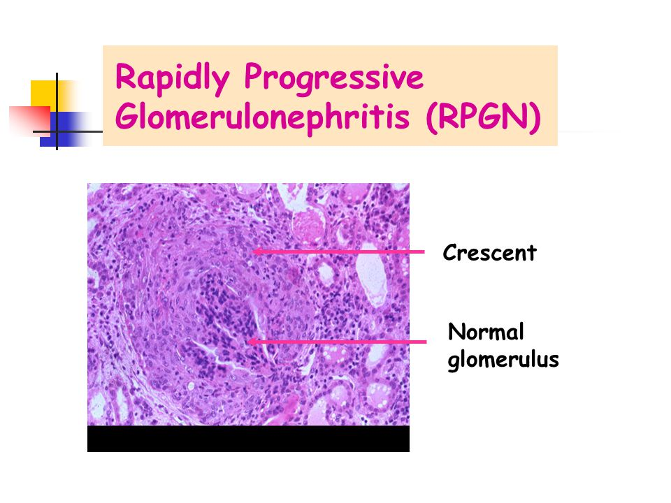 Glomerulonephritis (RPGN)