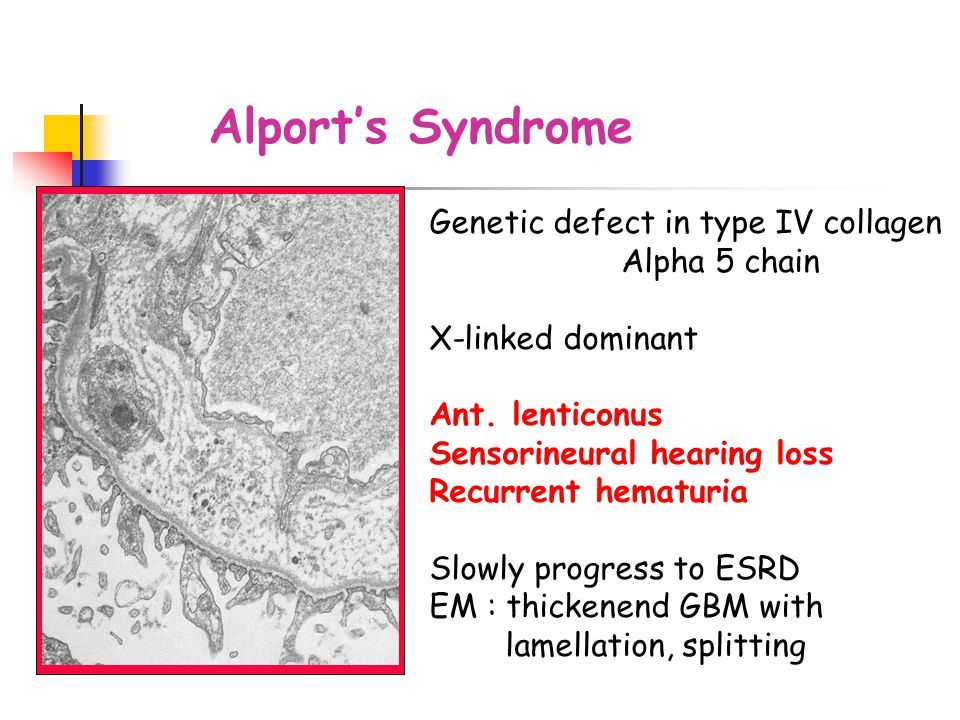 Alport's Syndrome Genetic defect in type IV collagen Alpha 5 chain