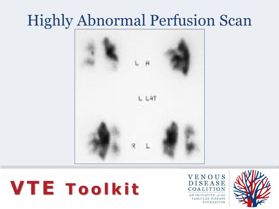 Highly Abnormal Perfusion Scan