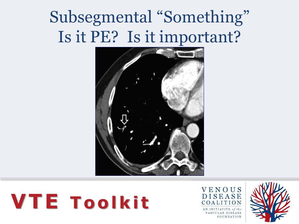 Subsegmental Something Is it PE Is it important