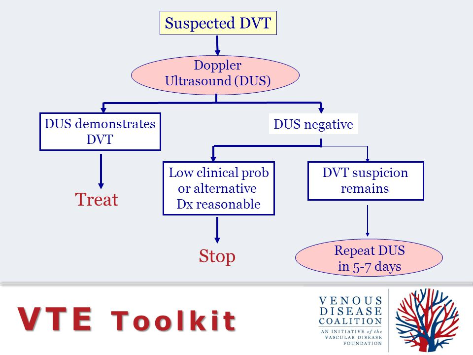 VTE Toolkit Treat Stop Suspected DVT Doppler Ultrasound (DUS)