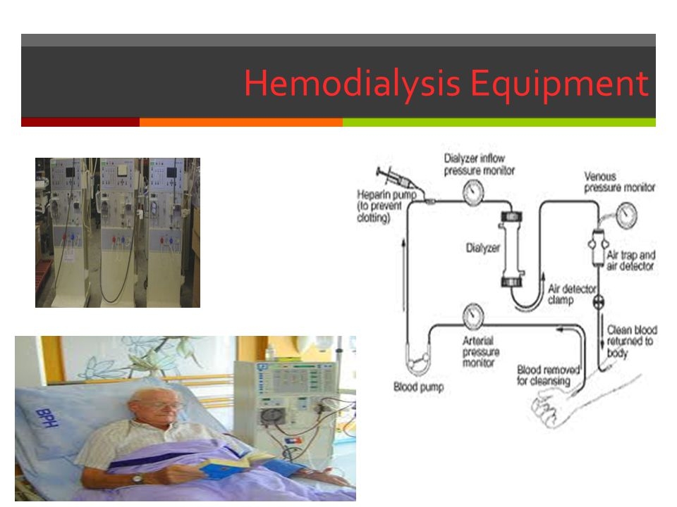 Hemodialysis Equipment