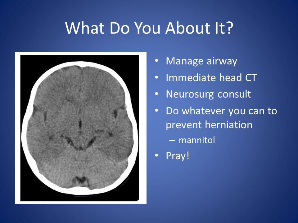 What Do You About It Manage airway Immediate head CT