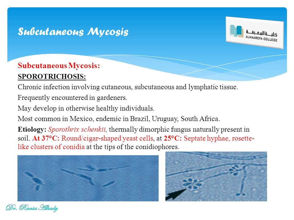 Subcutaneous Mycosis Subcutaneous Mycosis: Dr. Rania Alhady