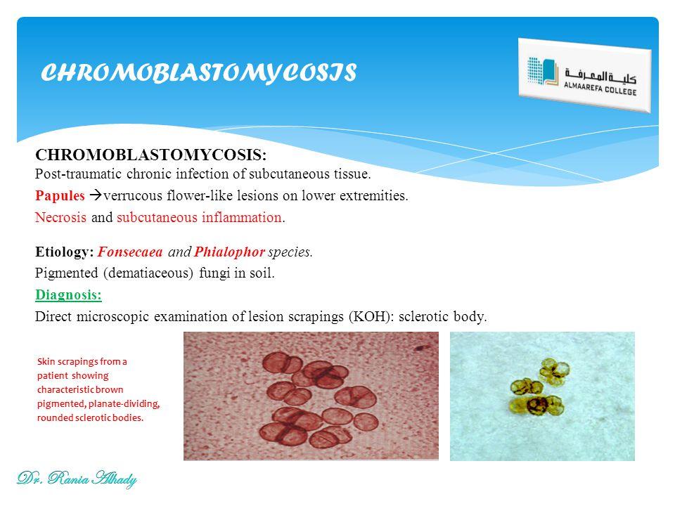 CHROMOBLASTOMYCOSIS Dr. Rania Alhady