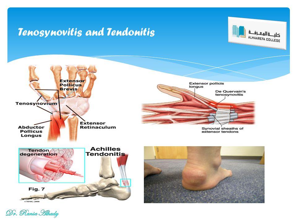 Tenosynovitis and Tendonitis