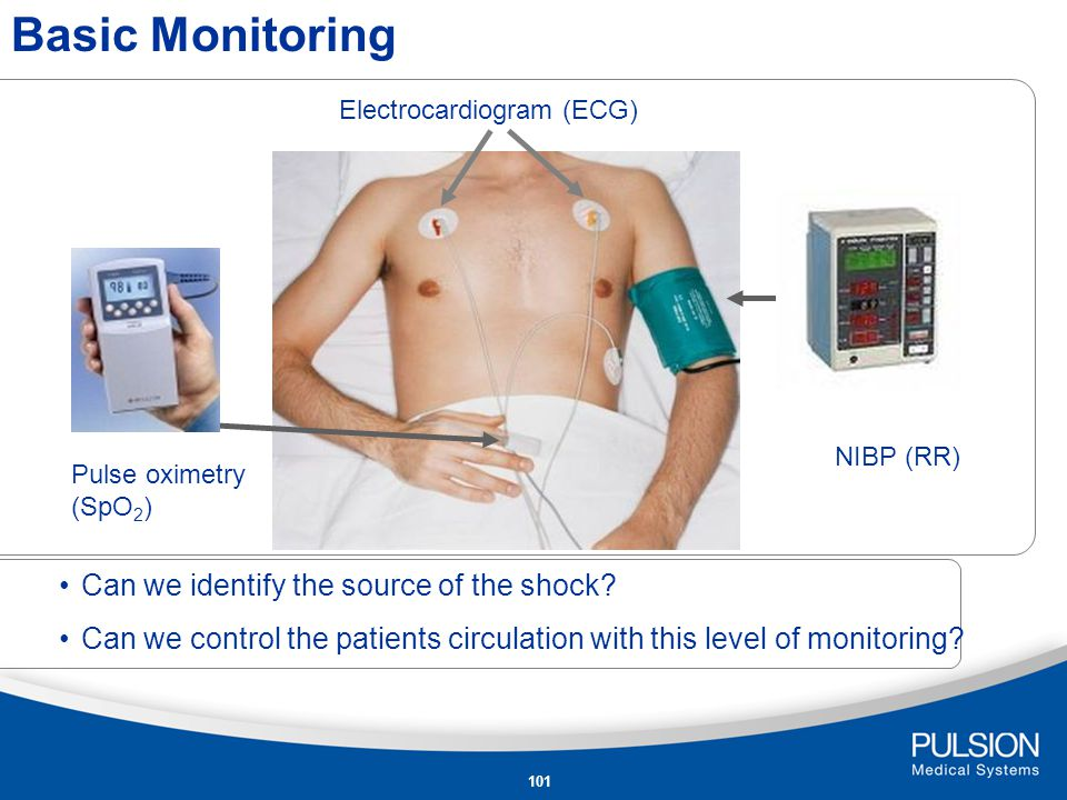 Basic Monitoring Can we identify the source of the shock
