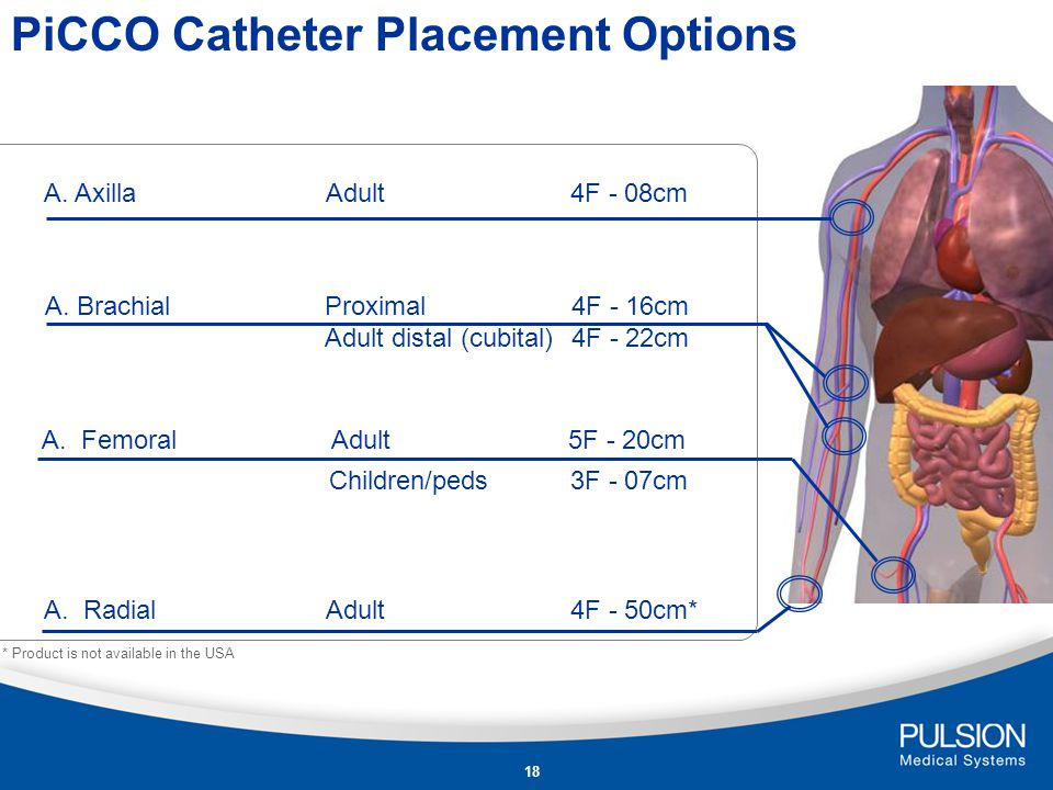 PiCCO Catheter Placement Options