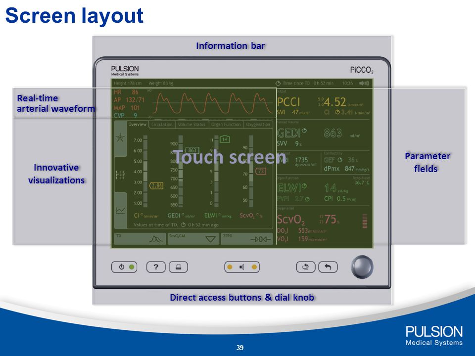 Innovative visualizations Direct access buttons & dial knob
