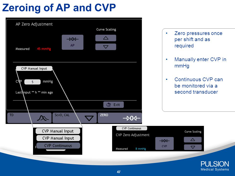 Zeroing of AP and CVP Zero pressures once per shift and as required