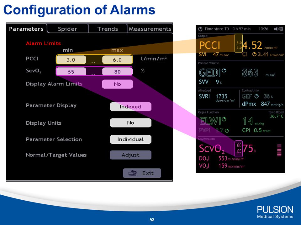 Configuration of Alarms