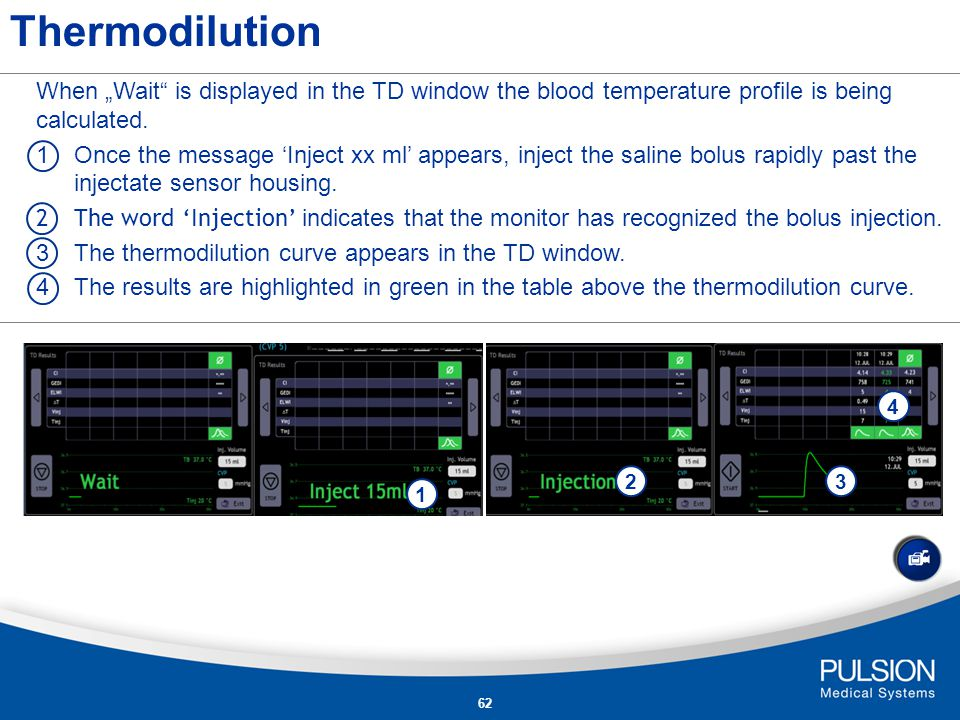 """Thermodilution When """"Wait is displayed in the TD window the blood temperature profile is being calculated."""