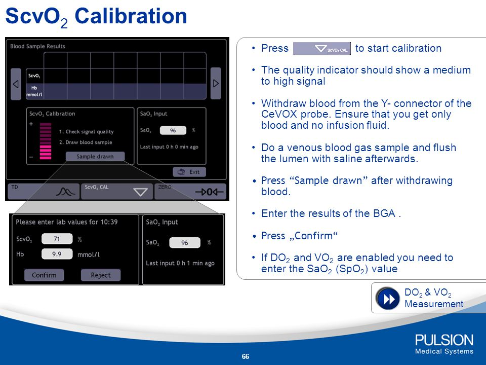 ScvO2 Calibration Press to start calibration