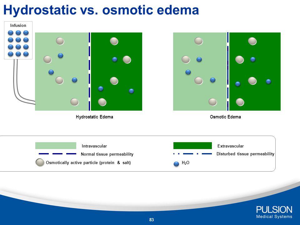 Hydrostatic vs. osmotic edema