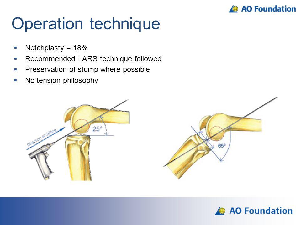 Operation technique Notchplasty = 18%