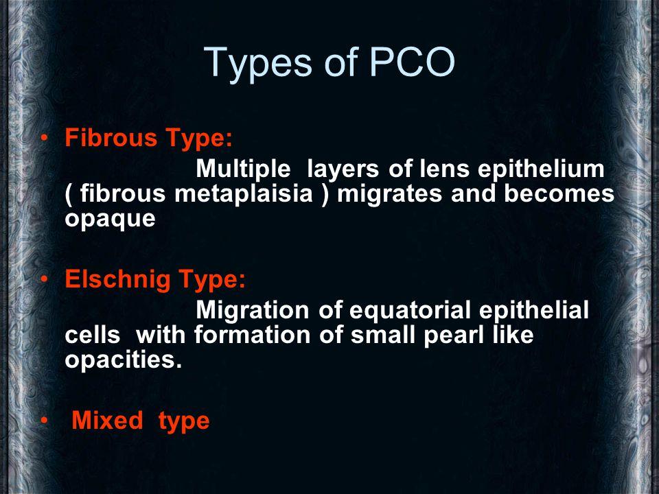 Types of PCO Fibrous Type: