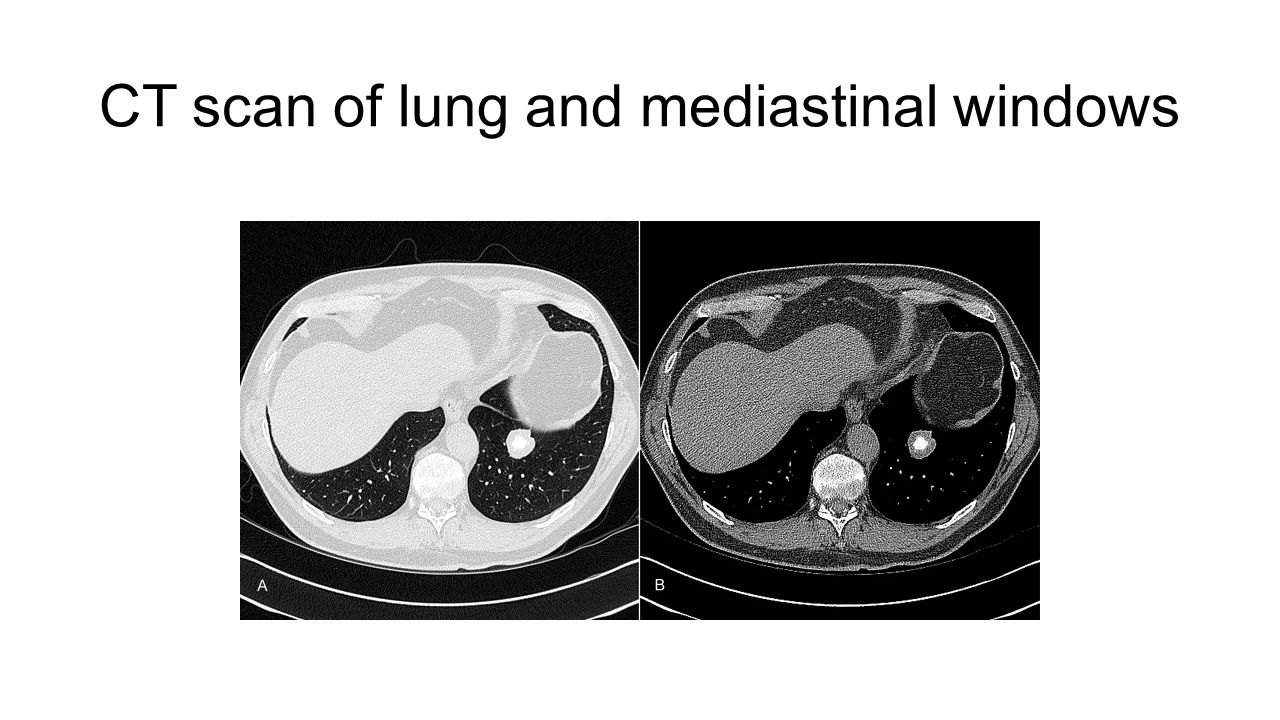 CT scan of lung and mediastinal windows