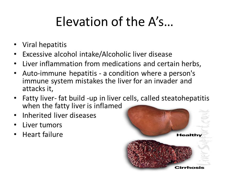 Elevation of the A's… Viral hepatitis
