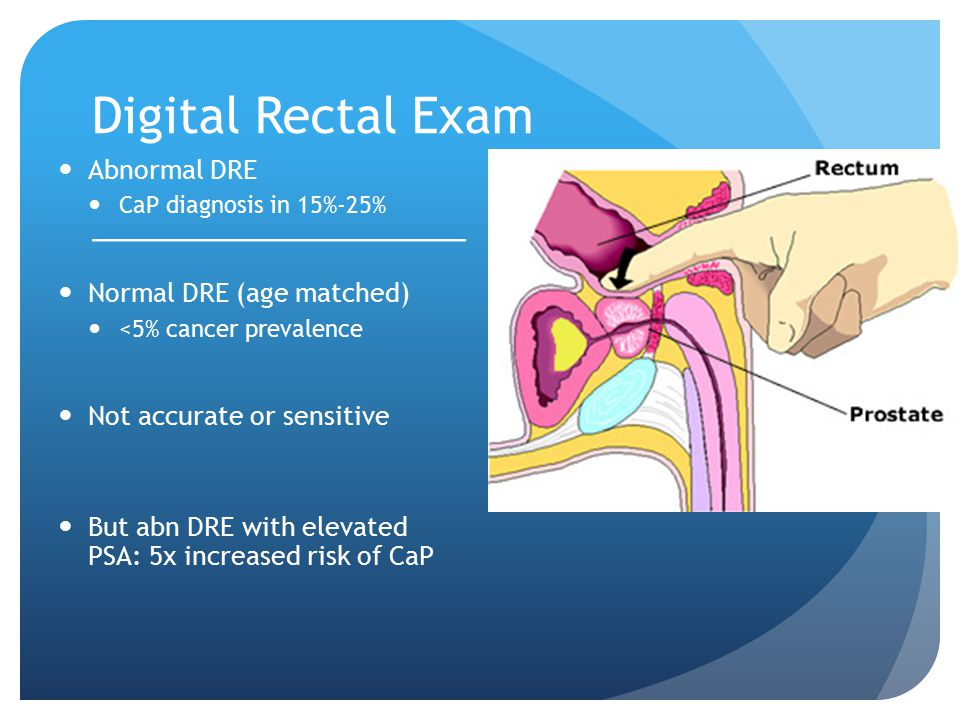 Digital Rectal Exam Abnormal DRE Normal DRE (age matched)