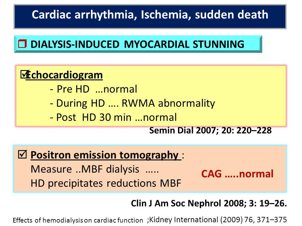 Cardiac arrhythmia, Ischemia, sudden death
