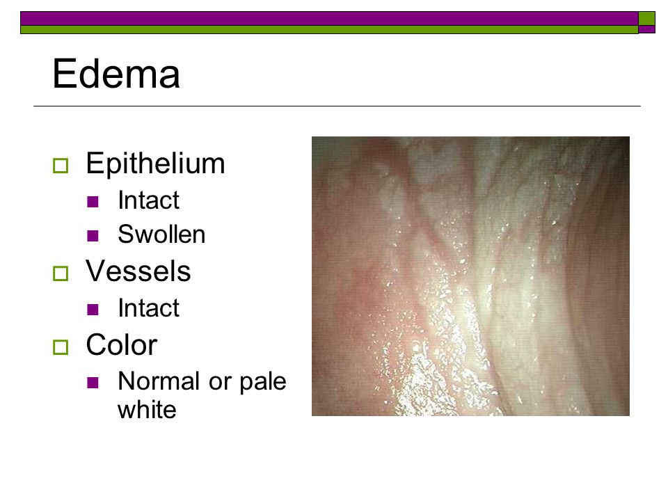 Edema Epithelium Intact Swollen Vessels Color Normal or pale white