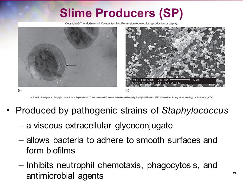 Slime Producers (SP) Produced by pathogenic strains of Staphylococcus