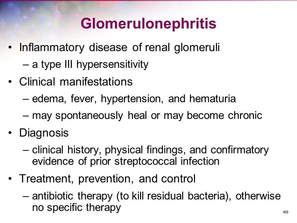 Glomerulonephritis Inflammatory disease of renal glomeruli
