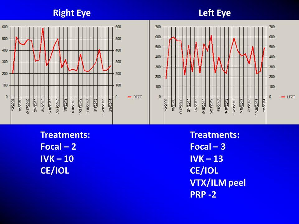 Right Eye Left Eye Treatments: Focal – 2 IVK – 10 CE/IOL Treatments: