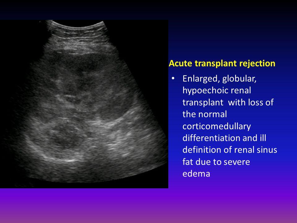 Acute transplant rejection