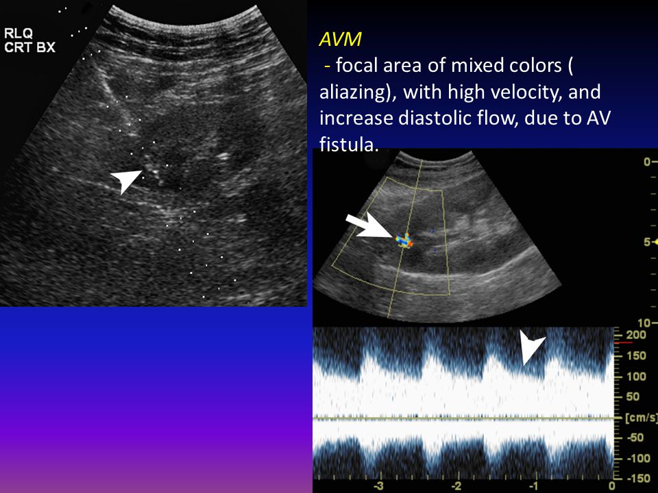 AVM - focal area of mixed colors ( aliazing), with high velocity, and increase diastolic flow, due to AV fistula.