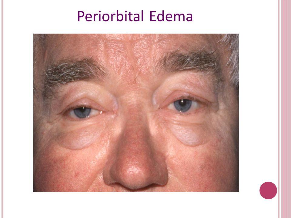 Periorbital Edema