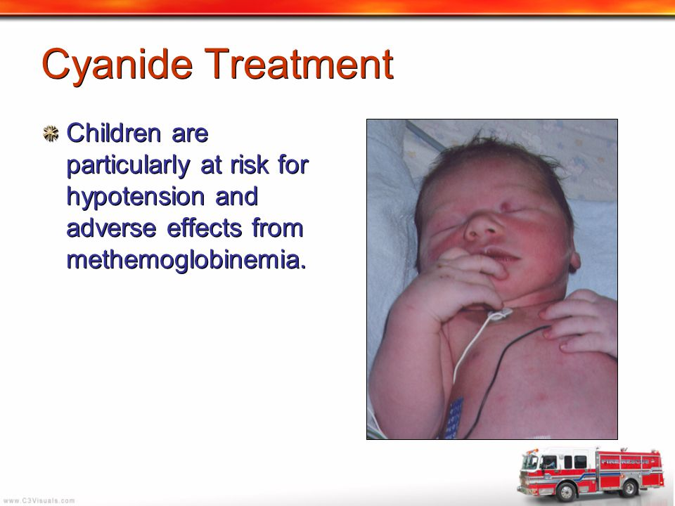 Cyanide Treatment Children are particularly at risk for hypotension and adverse effects from methemoglobinemia.