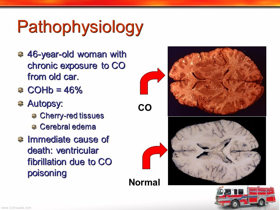 Pathophysiology 46-year-old woman with chronic exposure to CO from old car. COHb = 46% Autopsy: Cherry-red tissues.