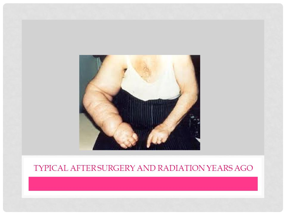 Typical after surgery and radiation years ago