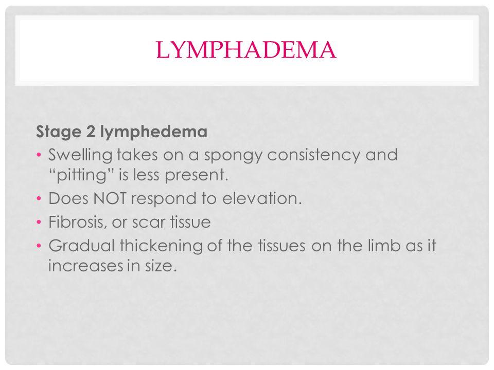 lymphadema Stage 2 lymphedema