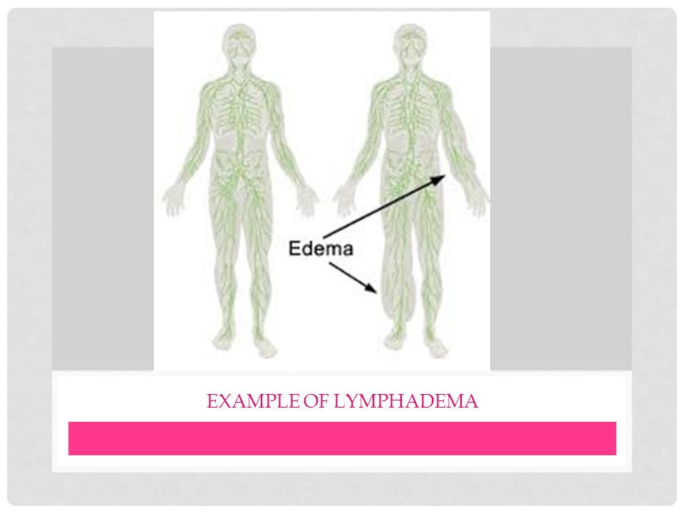 Example of lymphadema